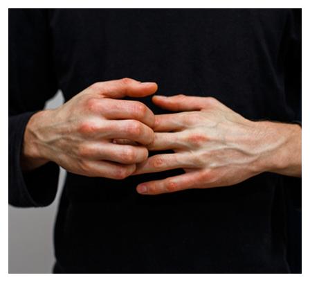 contact-eczema-dermatitis
