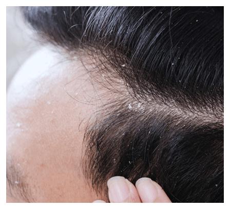 seborrhoeic-eczema-dermatitis